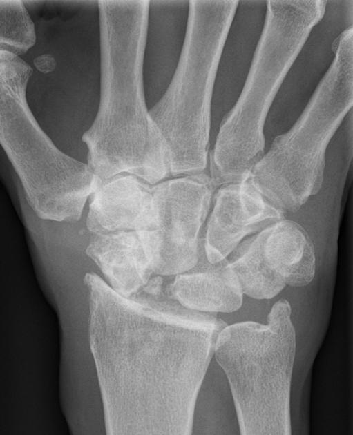 slac-wrist
