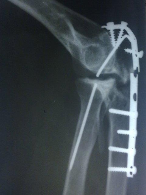 Broken Implant In Elbow