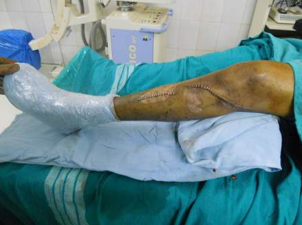 Leg After Wound Closure