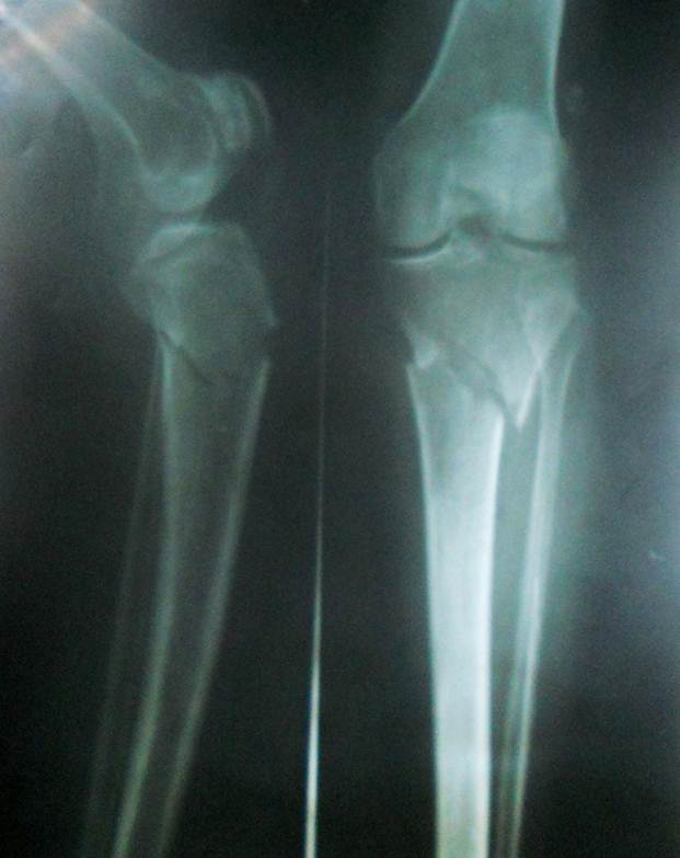 Proximal tibia fractures or Fracture Upper Tibial Metaphyses