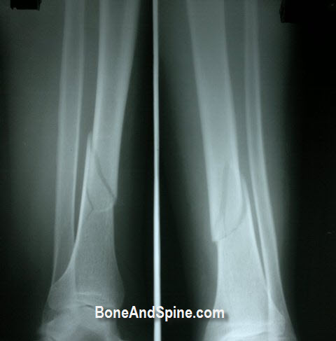 Comminuted Minimally Displaced Fracture Tibia