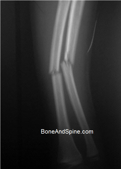 Fracture Radius and Ulna In Ten Years Old Child