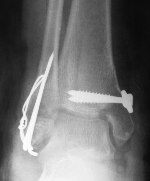 Postoperative Xray AP View Bimalleolar Fracture Ankle
