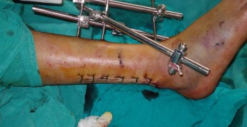 External Fixation Devices – Concept and Use