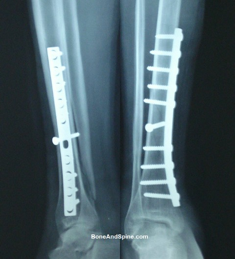 Operated Oblique Fracture of Lower Third Tibia