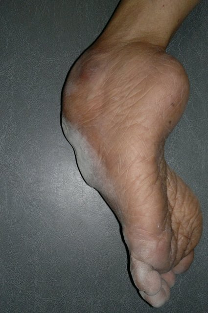 Neglected CTEV  Showing Outer Aspect of Foot