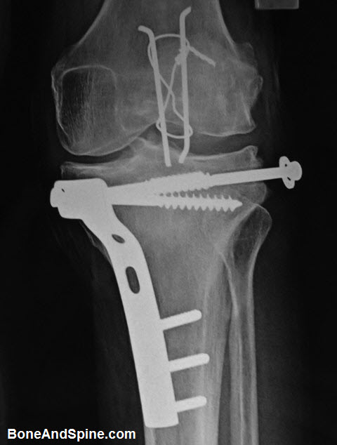 Oerated Fracture of Patella and Upper Tibia
