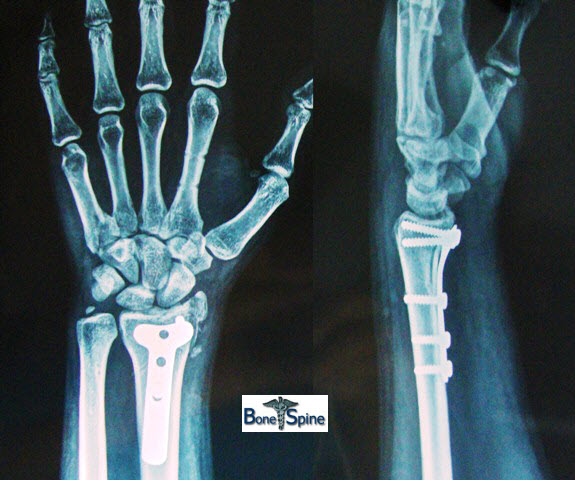 Wrist Injuries X-rays and Photographs | Bone and Spine
