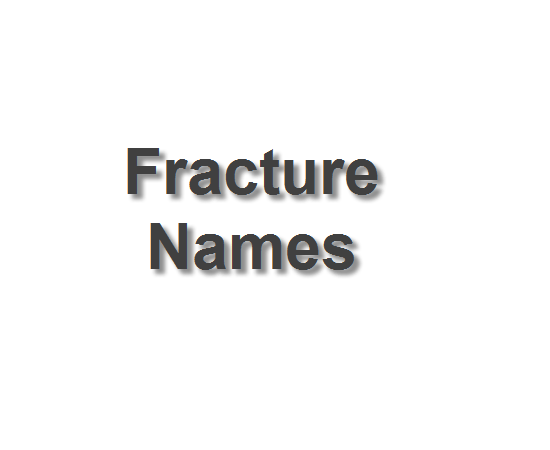popular fracture names