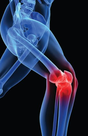 ARTHRITIS-KNEE-PAIN