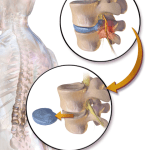 Herniated Disc surgeries