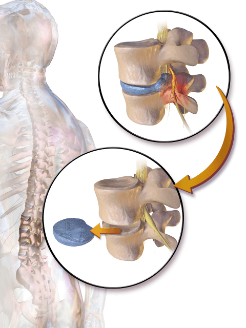 herniated-disc-surgeries-discectomy
