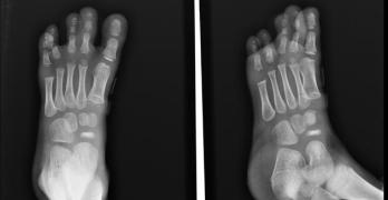 Kohler Disease or Navicular Osteochondrosis