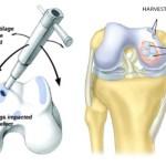Mosaicplasty or Osteochondral Graft Transfer System