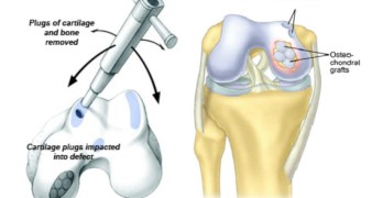 Mosaicplasty or Osteochondral Graft Transfer System