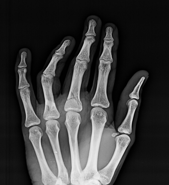 Fractures of proximal phalanx