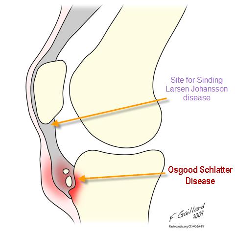 Image result for apophysis bone
