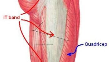 Iliotibial band anatomy bone and spine iliotibial band syndrome ccuart Gallery
