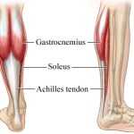 Achilles Tendinosis – Causes and Treatment