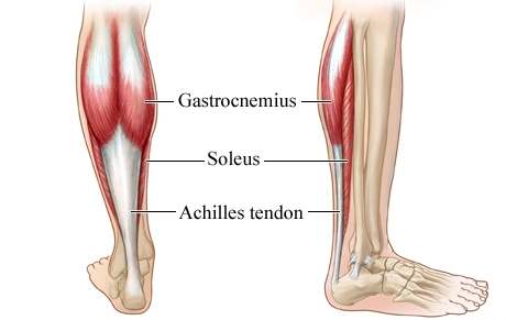 Achilles Tendinosis - Causes and Treatment | Bone and Spine