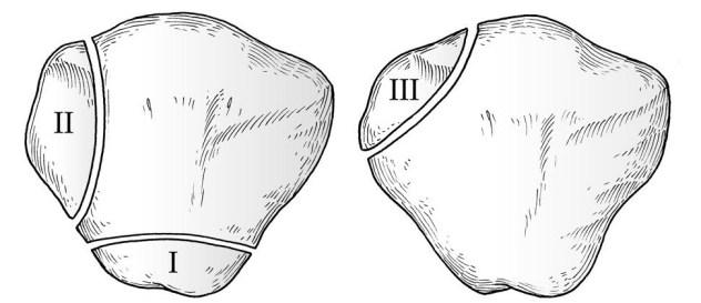 Classification of Bipartite Patella