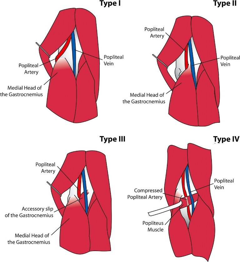Popliteal Artery Entrapment Syndrome | Bone and Spine