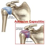 Adhesive Capsulitis or Frozen Shoulder – Causes, Symptoms and Treatment