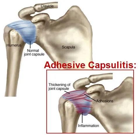 adhesive-capsultis