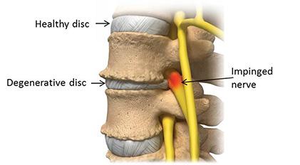 disk desiccation definition
