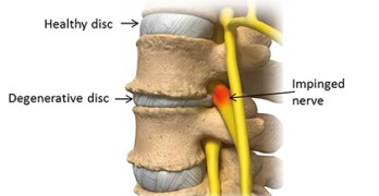 Degenerative Disc Disease – Symptoms and Treatment