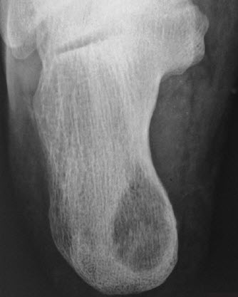 Tuberculosis of foot, calcaneum osteolytic variety