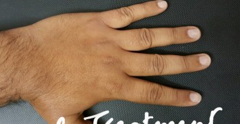 Hand Pain Causes and Treatment