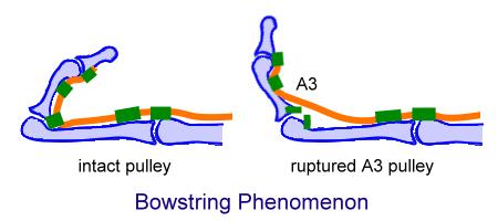 Bowstring phenomenon