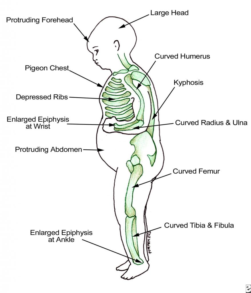 clinical features of rickets