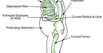 Rickets Causes and Treatment