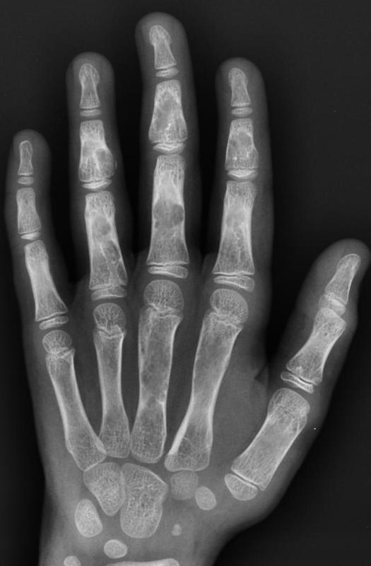 Enchondromatosis or ollier disease hand