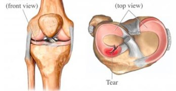 Exercise as effective as surgery for Degenerative Meniscal Tear – Study