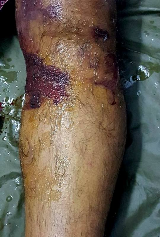 Compartment syndrome in leg