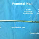 A femoral nail with dynamic and static proximal locks