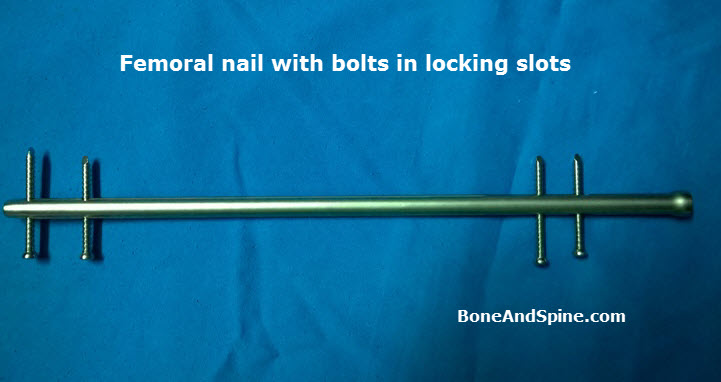 An interlock nail with bolts passed through the slots