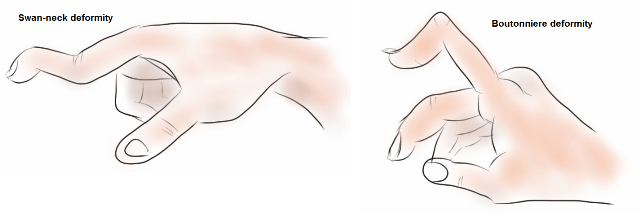Deformities in rheumatoid Arthritis