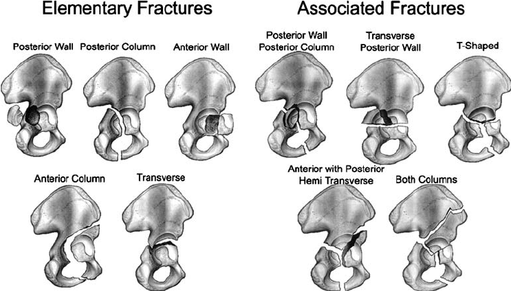 Classification of Acetabular Fractures