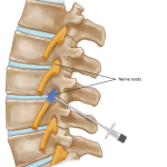 Selective Nerve Root Block – Indications and Applications