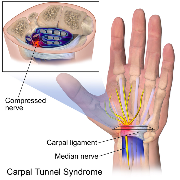 Carpal Tunnel Syndrome Presentation And Treatment Bone And Spine
