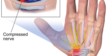 Carpal Tunnel Syndrome Presentation and Treatment