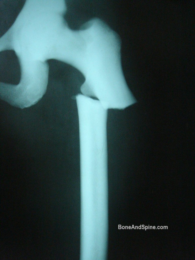 osteopetrosis of femur with fracture, Note the obliterated medullary cavity