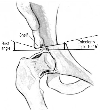 Shelf osteotomy