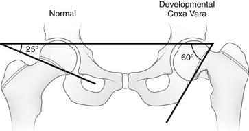hilgenreiner-epiphyseal-angle
