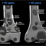 Musculoskeletal Tumors – Classification, Diagnosis and Treatment