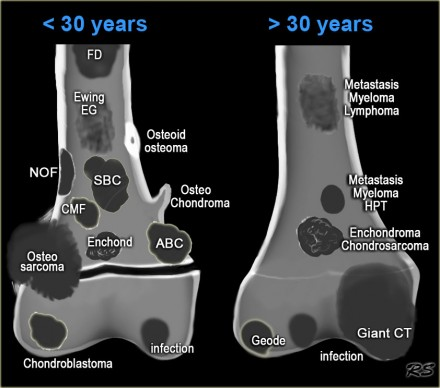 Location of musculoskeletal tumors
